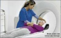 MRI scans were used to investigate changes