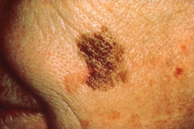 skin cancer on face