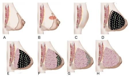 Graphic showing stages of a breast construction
